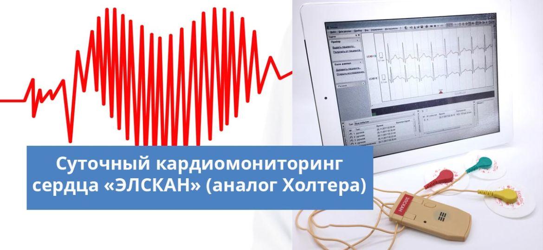 суточный кардиомониторинг сердца