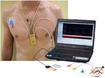 аналог холтер мониторинг сердца