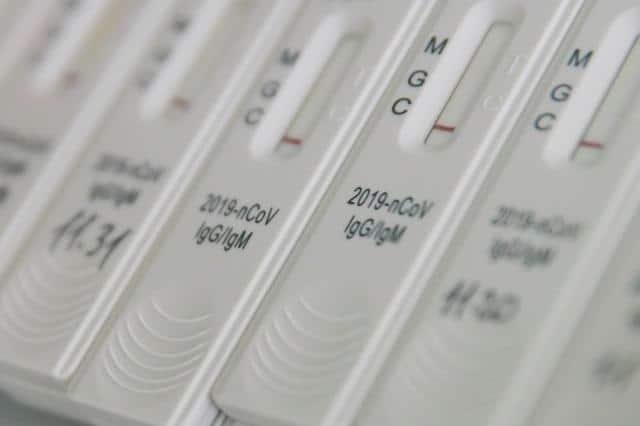 test-na-koronavirus