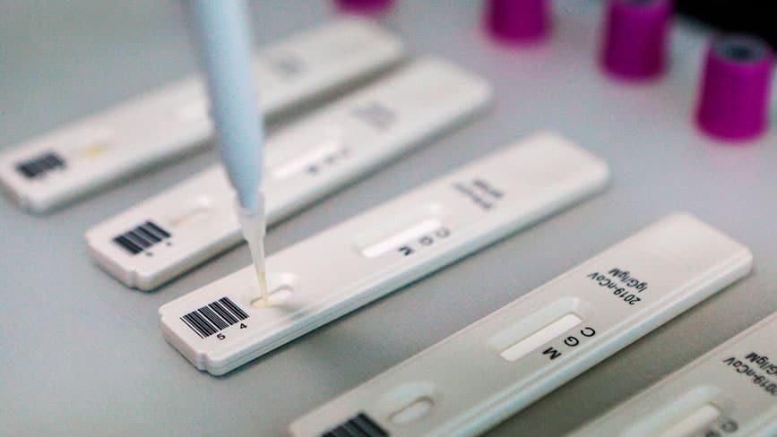 экспресс тест на антитела к коронавирусу купить