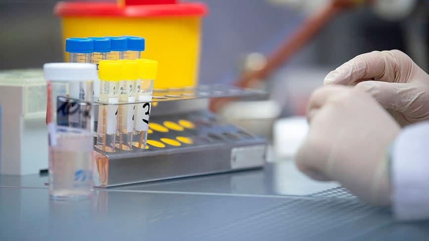 как работает экспресс тест на коронавирус